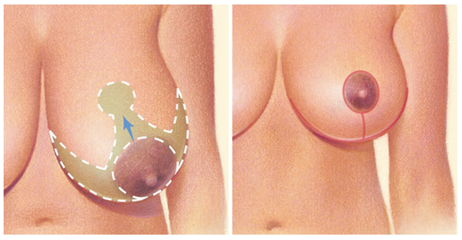 breast-reduction-incisions-2
