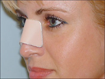 nose-plastic-surgery