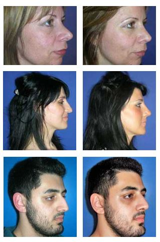 rhinoplasty-cases