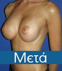 4meta