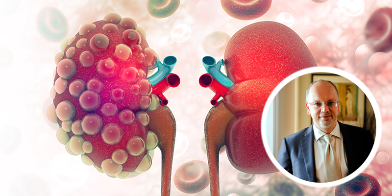 Καρκίνος του νεφρού : ένας σιωπηλός εχθρός…
