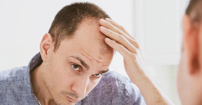 Ανδρογενετική Αλωπεκία: Τι Είναι Και Πώς Αντιμετωπίζεται;